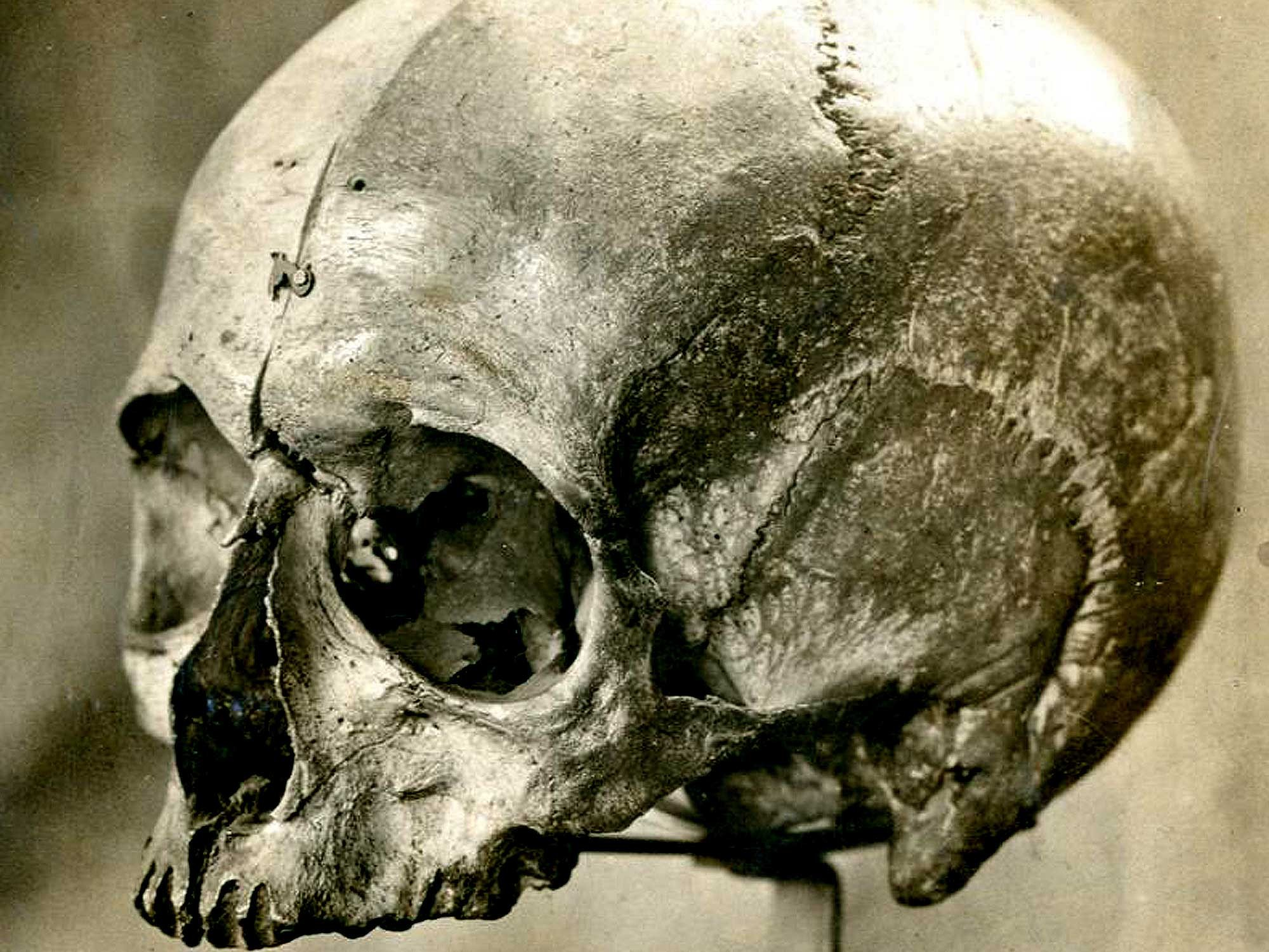 The skull of Eugene Aram is now on display in the Stories of Lynn museum in King's Lynn
